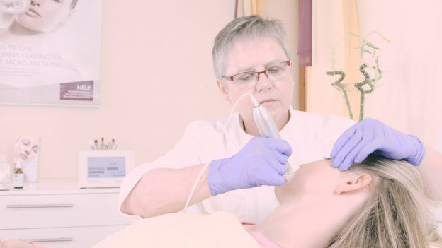 Micro Needling am Kunden